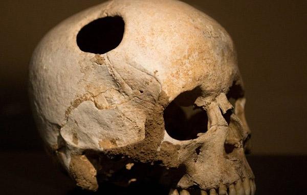 pengobatan-menyeramkan-zaman-kuno