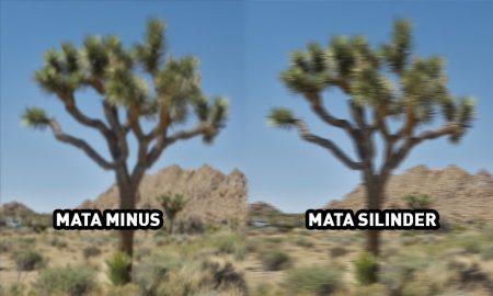 Perbedaan Mata Minus dan Silinder
