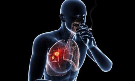 Penyebab Penyakit Kanker Paru-Paru