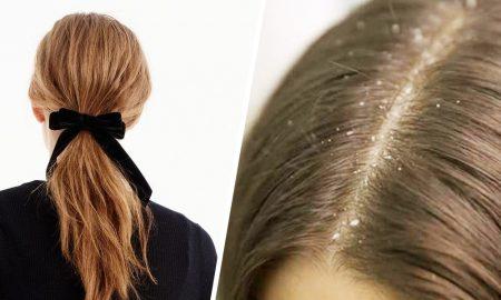 Dampak Buruk Keseringan Mengikat Rambut