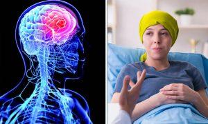 Penyakit Langka Pada Otak Manusia